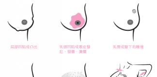 乳房出現這些變化要留意