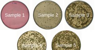 床上面的細菌樣本