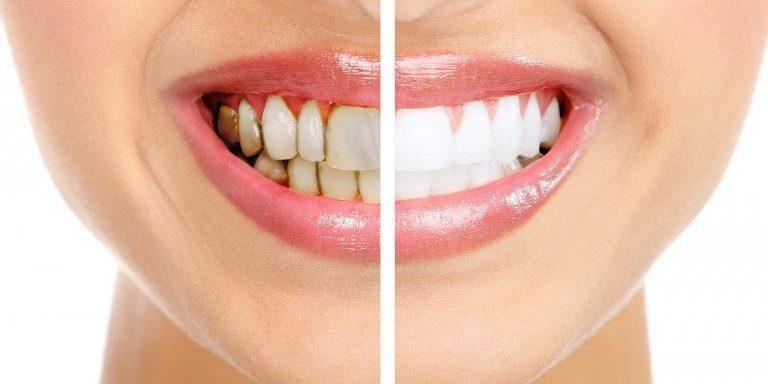 牙膏能修復琺瑯質?